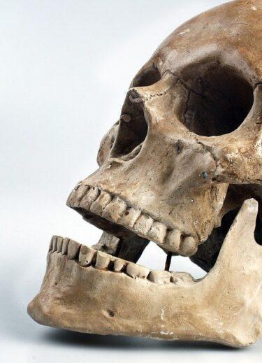 歯医者さんでまた、虫歯が…。そして親知らずも…。